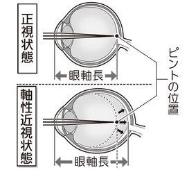 正視状態と軸性近視状態