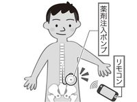 脳卒中後遺症の新治療で、介護の負担軽減 沖縄県医師会編「命ぐすい耳ぐすい」(1115)