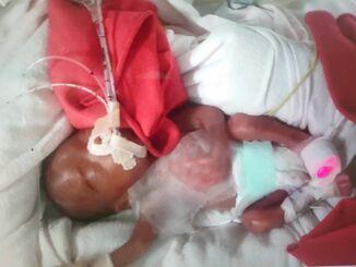 妊娠24週、580グラムで産まれた女性の息子。亡くなった最愛の母から1文字を借りて、家族で話し合って命名した=8月29日(提供)