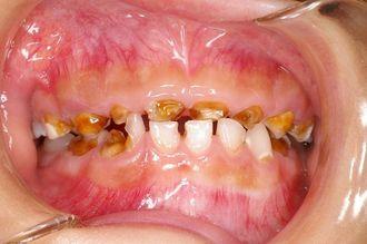 口腔崩壊状態にある8歳男児の口内(大阪府歯科保険医協会提供)