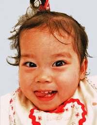 米国で心臓移植のひまりちゃん、2歳に 両親「3歳は自宅で迎えられるように」