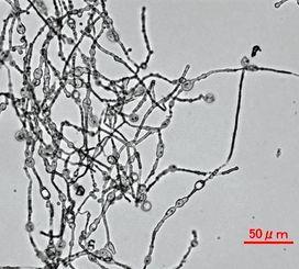 西表島で見つかった黒カビのスタキボトリスミクロスポラ(ティムス提供の電子顕微鏡の写真)