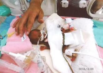 長野県立こども病院で誕生した258グラムの男児=2018年10月5日(同病院提供)