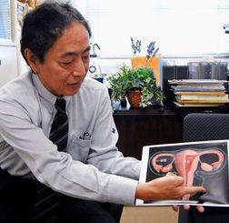 手術の概要を説明する琉球大学医学部付属病院産科婦人科の青木陽一教授=西原町・琉球大学医学部・臨床研究棟