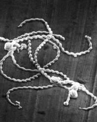 病原性レプトスピラの電子顕微鏡像  (出典:国立感染症研究所ホームページ  http://www.nih.go.jp/niid/ja/kansennohanashi/531-leptospirosis.html)