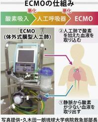 ECMOの仕組み