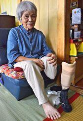 切断した足を優しくなでながら、沖縄戦当時を語る玉那覇政子さん=15日、西原町の自宅